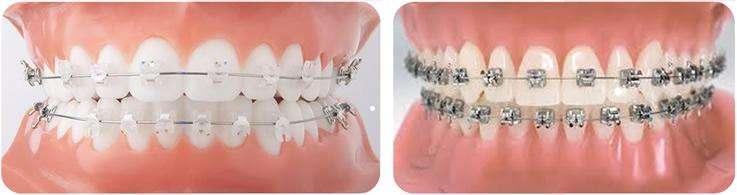 Aparelhos Ortodontico Fixo
