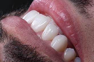 Clareamento Dentario