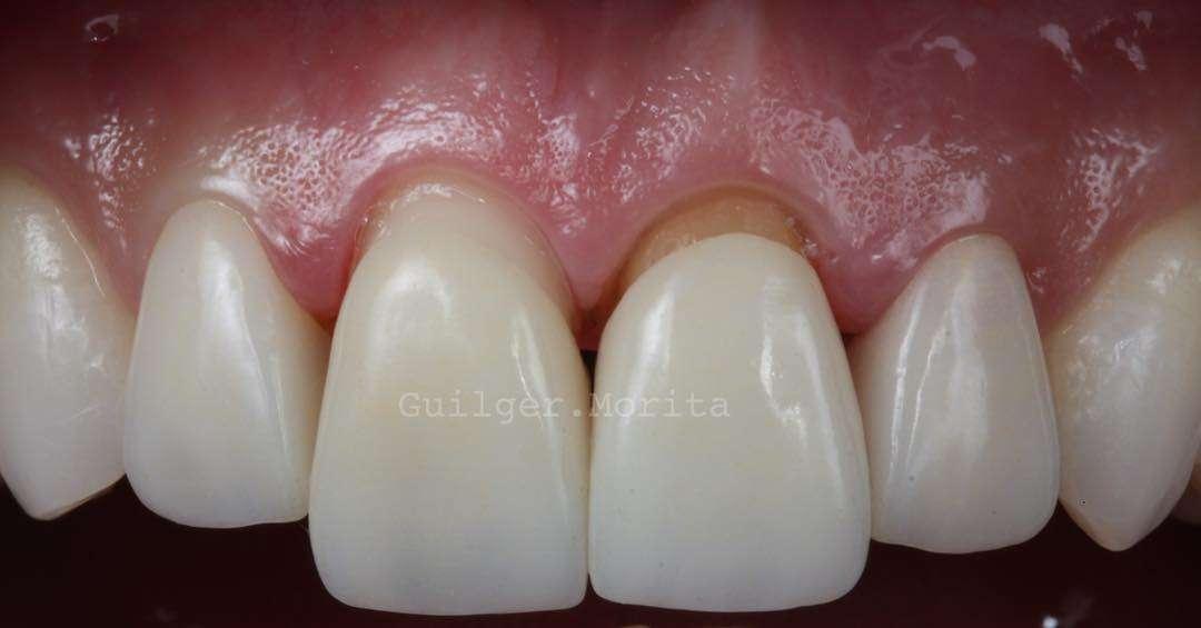 Coroa Dentárias