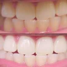 clareador de dentes