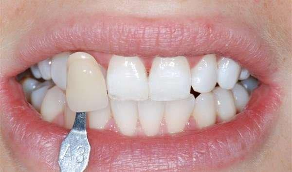dentes clareamento caseiro
