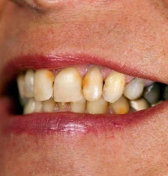 aparelho para tirar tártaro dos dentes