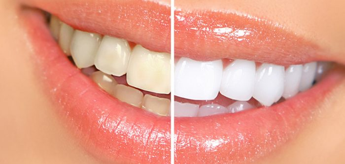 clareamento dental caseiro onde comprar