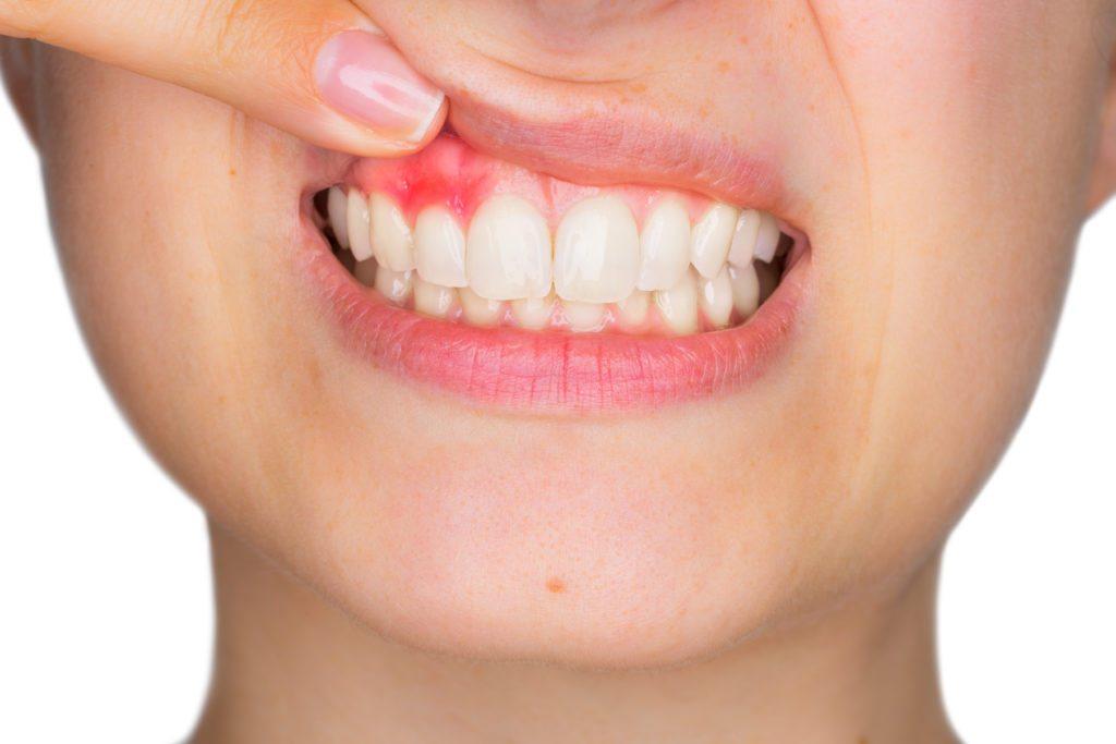 dente inflamado