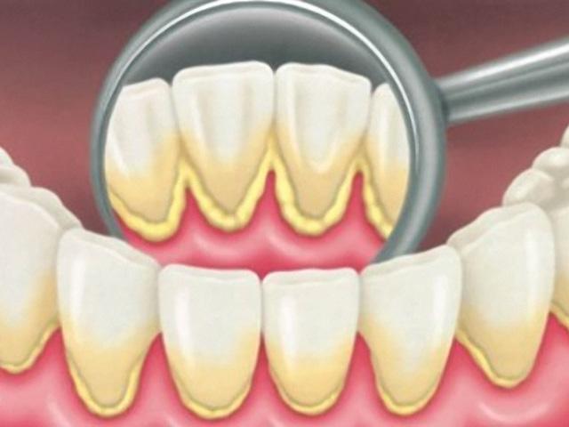 remoção de tártaro nos dentes