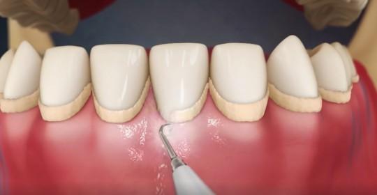 remover placa bacteriana dos dentes