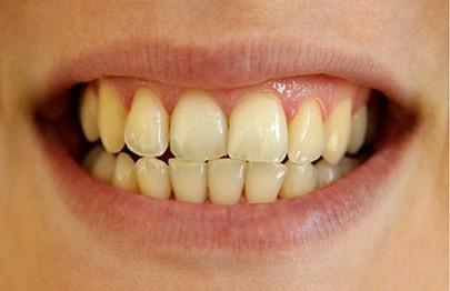 tirar placas dos dentes